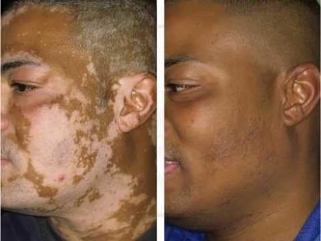 Apesar dos resultados, método cubano para cura do vitiligo é pouco reconhecido no Brasil 1 piramidal.org