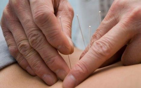 Acupuntura no SUS ajuda pacientes com dores sem solução 1 piramidal.net