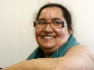 Maria Eni afirma que as agulhadas foram a solução para as dores que a acompanhavam há 10 anos: 'respirei e não doeu'.